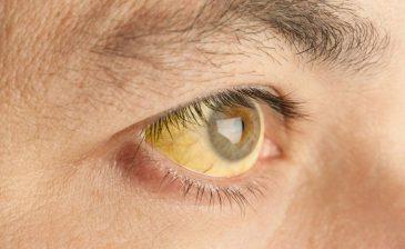 """تحذير من """"اصفرار العين"""".. جرس إنذار لأمراض خطيرة"""