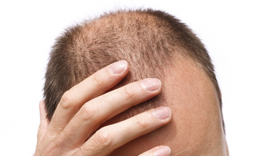 "مهندس هندي ينتحر ""شنقًا"" بسبب تساقط شعره"